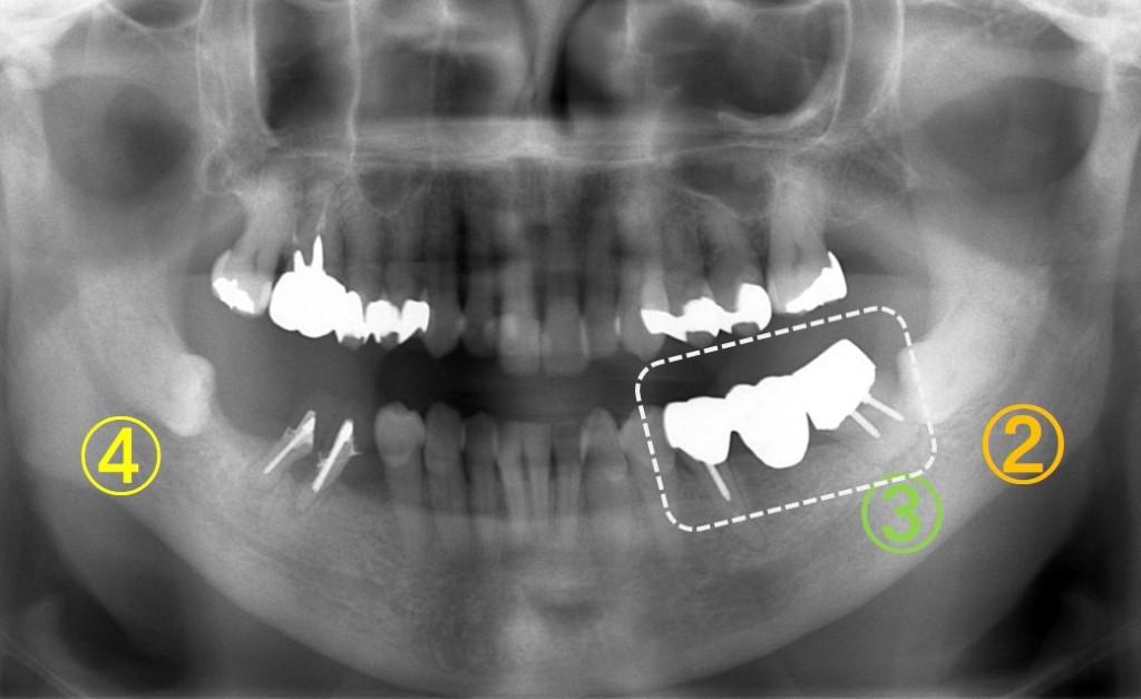 歯の移植(歯周病)4