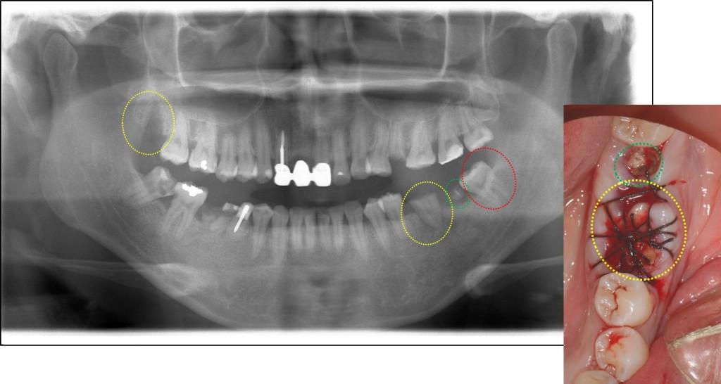 親知らずの移植2 歯周病専門医 渡辺歯科医院(小矢部市砺波地区)