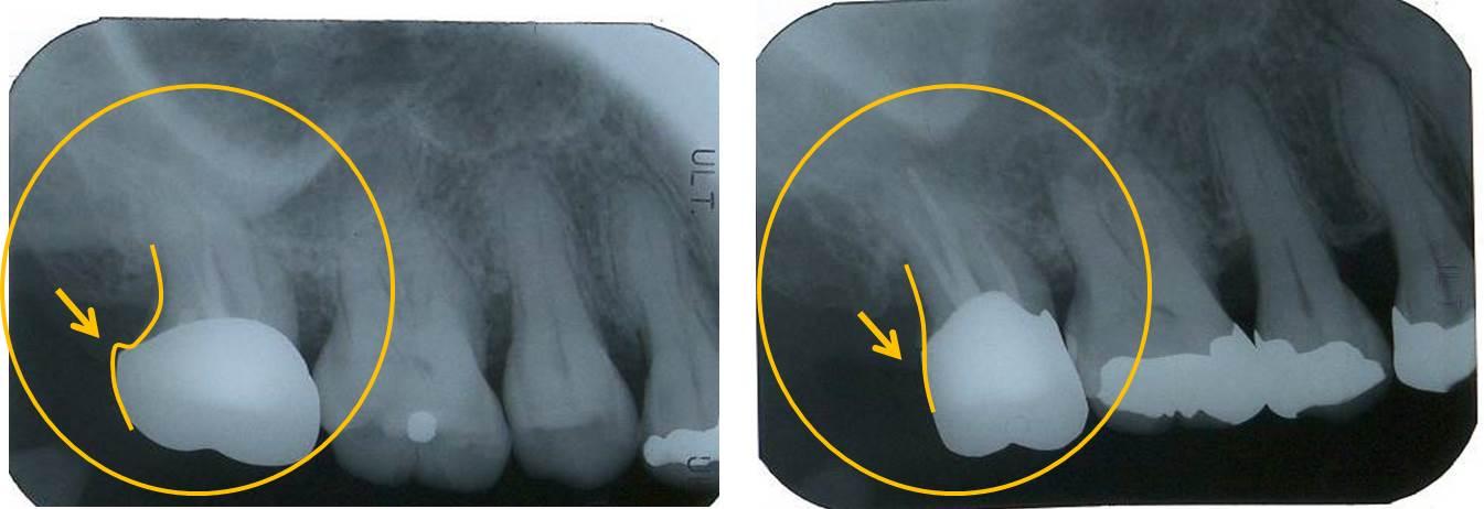歯周病治療後の冠