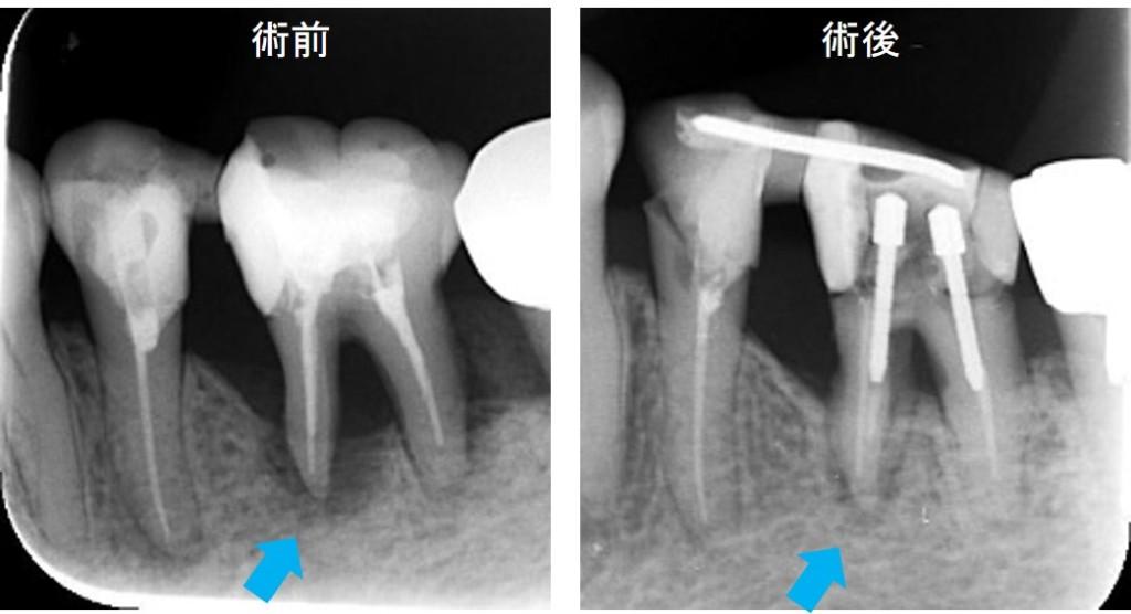 歯周病治療(SRP)