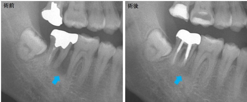 歯周病と類似疾患