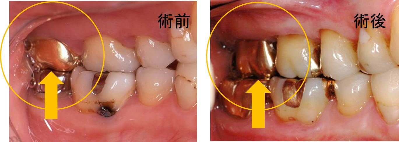 歯周病治療の冠2