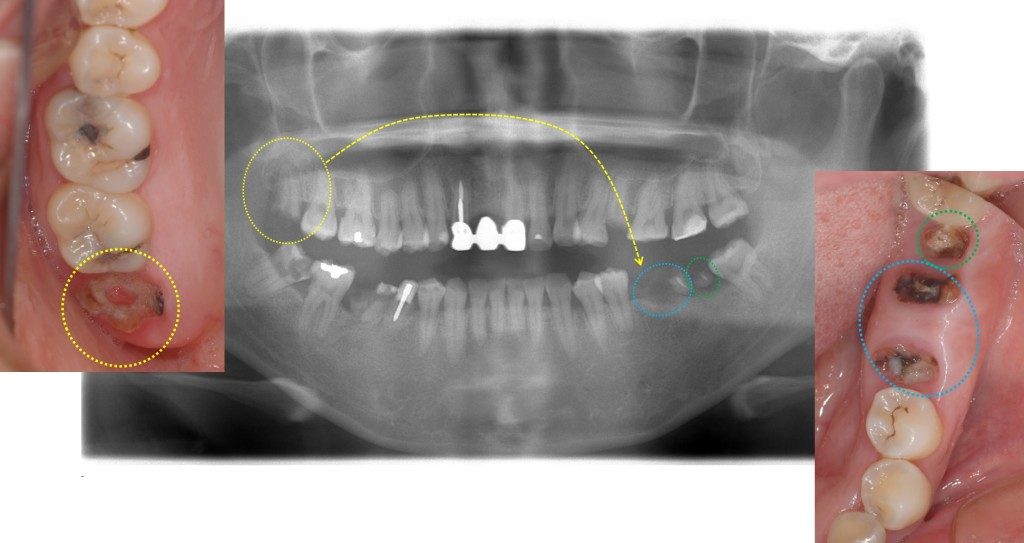 親知らずの移植1 歯周病専門医 渡辺歯科医院(小矢部市砺波地区)