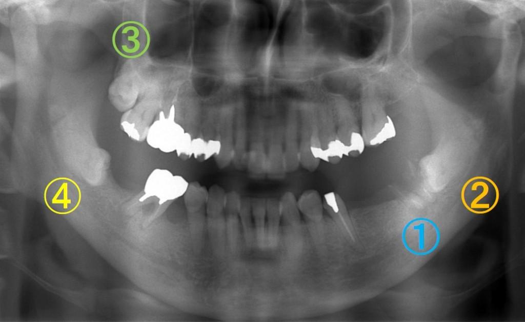 歯の移植(歯周病)2