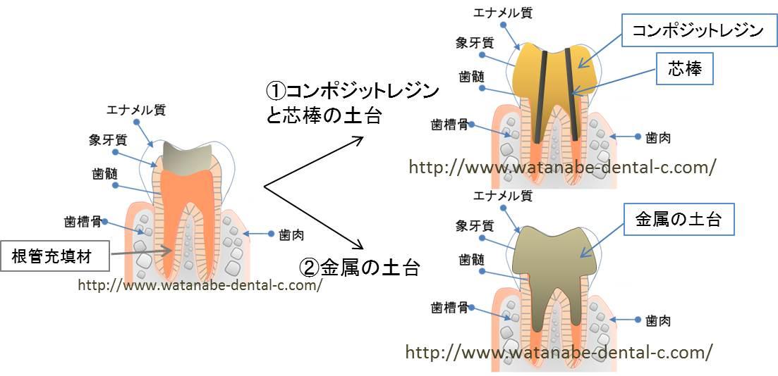 53.「歯周病治療」と「噛み合わせ治療」の同時進行は可能 ...