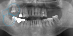 歯の移植(歯周病ケース)