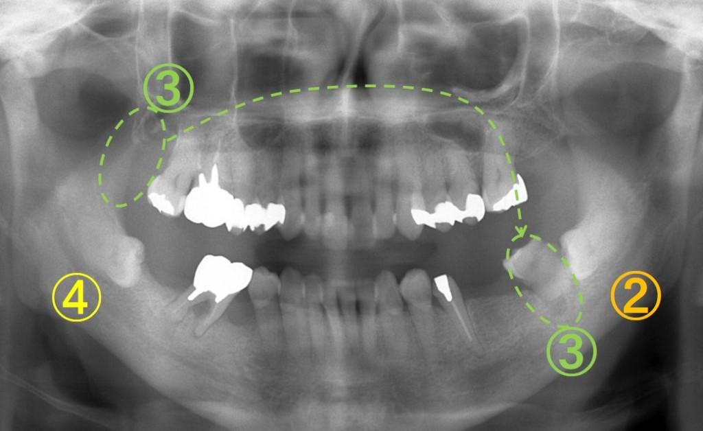 歯の移植(歯周病)3