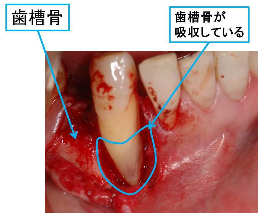 歯周病が進行した状態